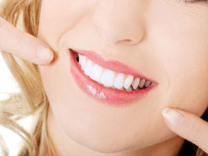 Đa số khách tẩy trắng răng Plasma tại Seoul Luxury đều nhận kết quả xứng đáng